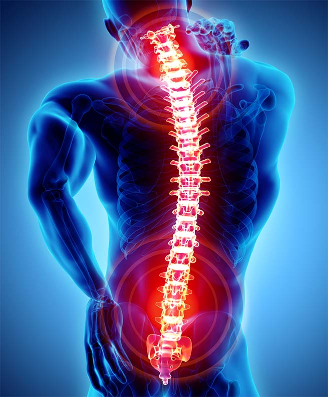 Spinal Disc Injuries